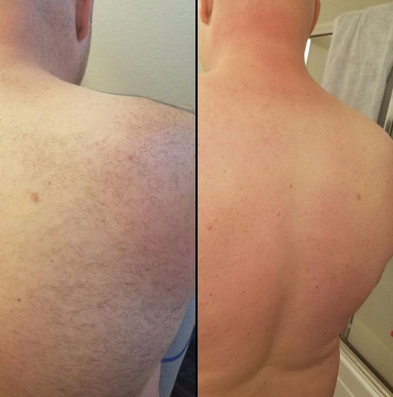 A reviewer showing their back pre and post wax hair removal