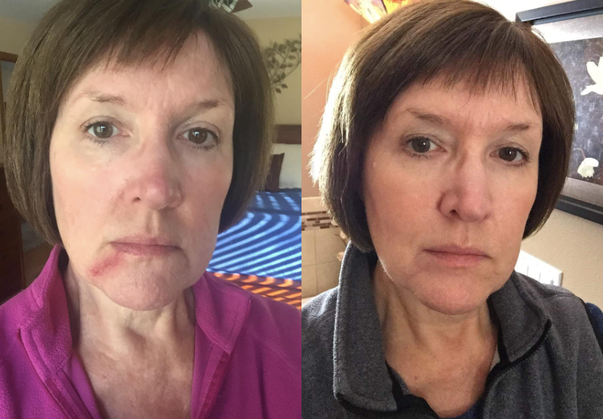 before: reviewer with scar on chin after: scar covered and hard to see