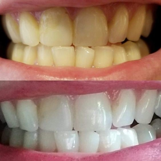 before-and-after photo of reviewer's teeth which are noticeably whiter after using charcoal toothpaste