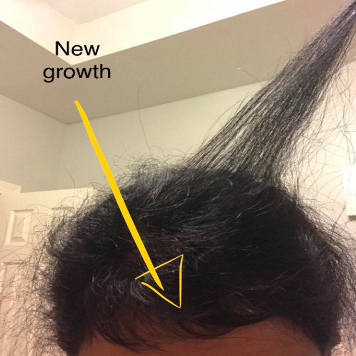 """arrow pointing to a person's scalp labeled """"new growth"""" to demonstrate the effectiveness of the silicone brush"""