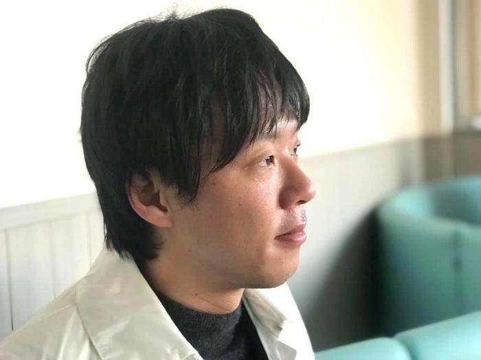 家族性大腸ポリポーシスを母から受け継ぎ、入院や手術を繰り返してきた山崎雅也さん