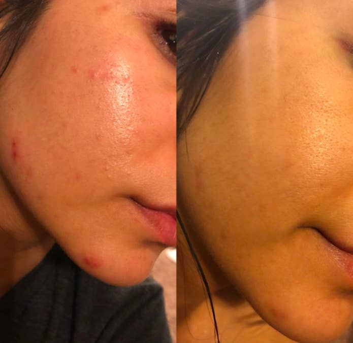 24 Products That Stop Pimples In Their Tracks