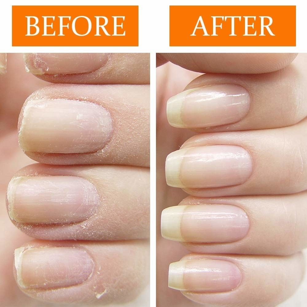 before/after image of dry brittle nails and an after photo showing longer, healthy looking nails