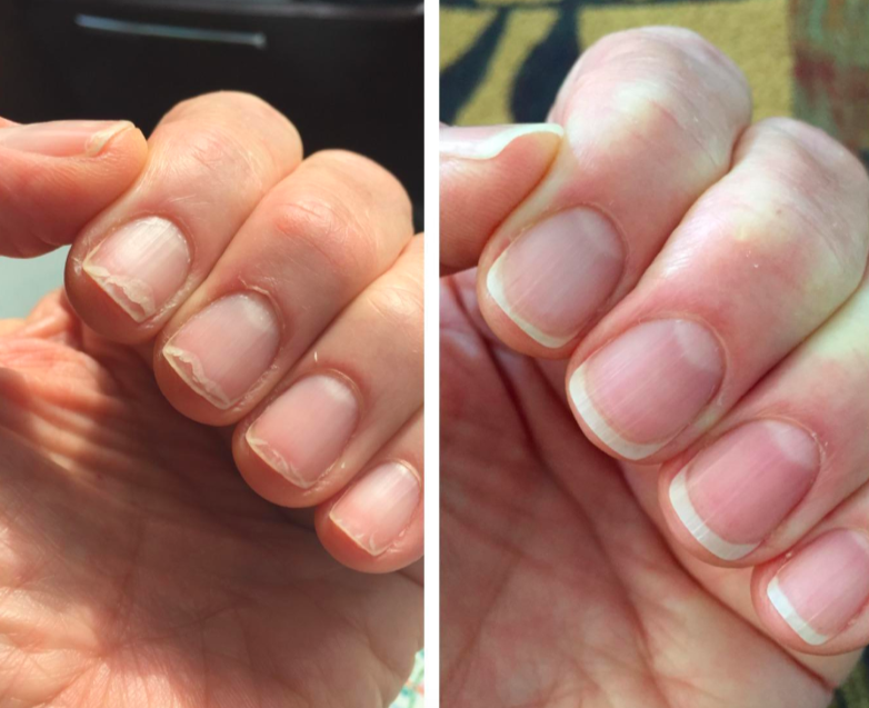 before and after photo of reviewer with brittle nails and cuticles on left and strong, healthy nails on right