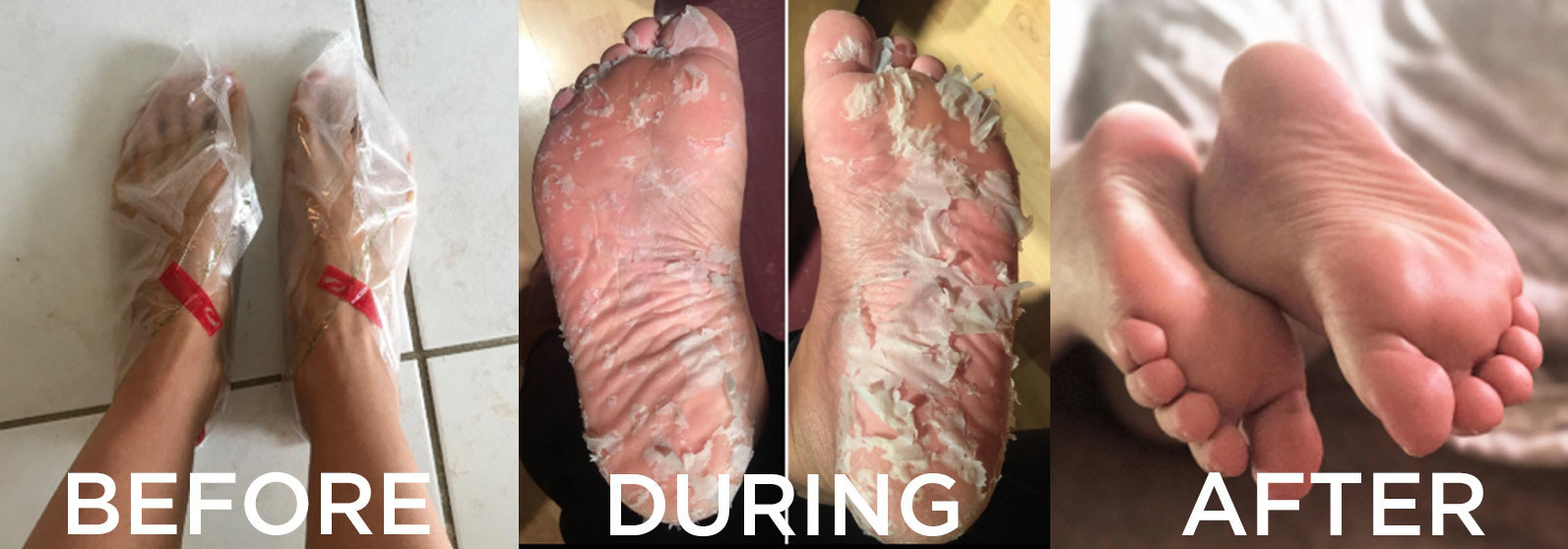 a before, during, and after reviewer picture that shows the process of putting feet into plastic socks, the feet peeling a lot, and smooth feet afterwards