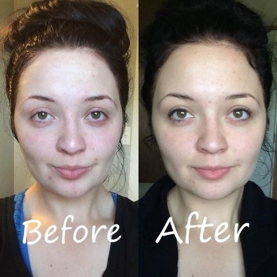 Reviewer's before and after picture of their face red with a little acne, and then their face significantly less red without acne