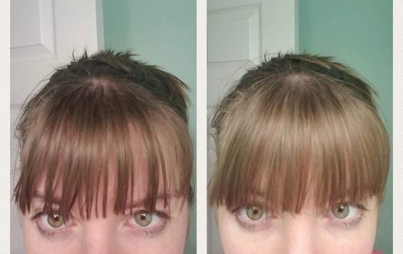 A reviewer's greasy bangs before using the powder / A reviewer's clean bangs after using the powder