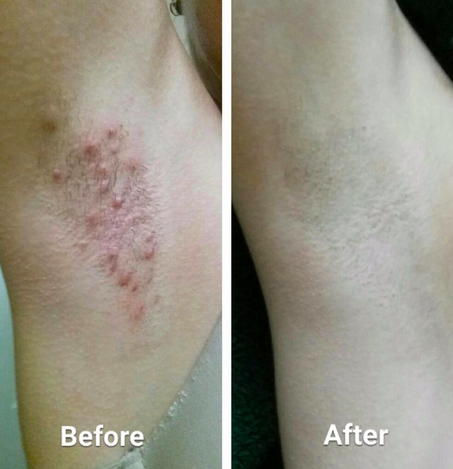 """A split image with the left portion labeled """"Before"""" has an armpit with large, red razor bumps and the right portion labeled """"After"""" is the same armpit but smooth and with no irritation."""