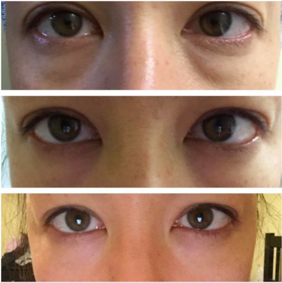 reviewer photo showing their eyes before and after using the hyaluronic acid serum