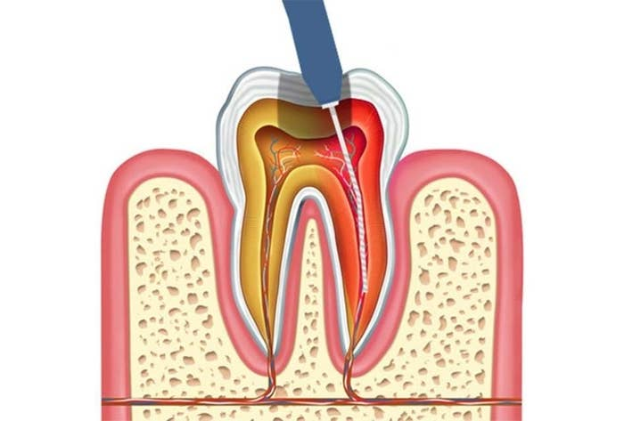 "Partial root canals are often in order depending on how far the infection itself actually spreads into your root canal. This procedure is called a pulpectomy, and it relieves your pain and allows for antibiotics to lessen the infection over time. Basically, you'll make two trips to your dentist or endodontist. The first, they'll give you antibiotics to reduce the infection. At the follow up appointment, they'll actually remove the infected ""pulp"", and clean and fill the infected canal afterwards."