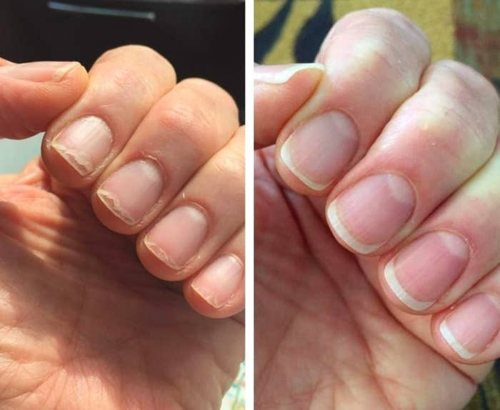 on left, reviewer's peeling nails and dry cuticles. on right, reviewer's same nails without cracking and better cuticles after using conditioning oil