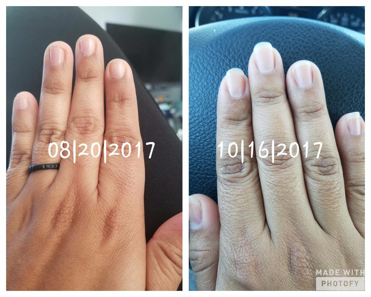 A reviewer's hand in two photos: one with short, bitten-down nails dates 8/20/2017 and one with longer, healthy-looking nails dated 10/16/2017