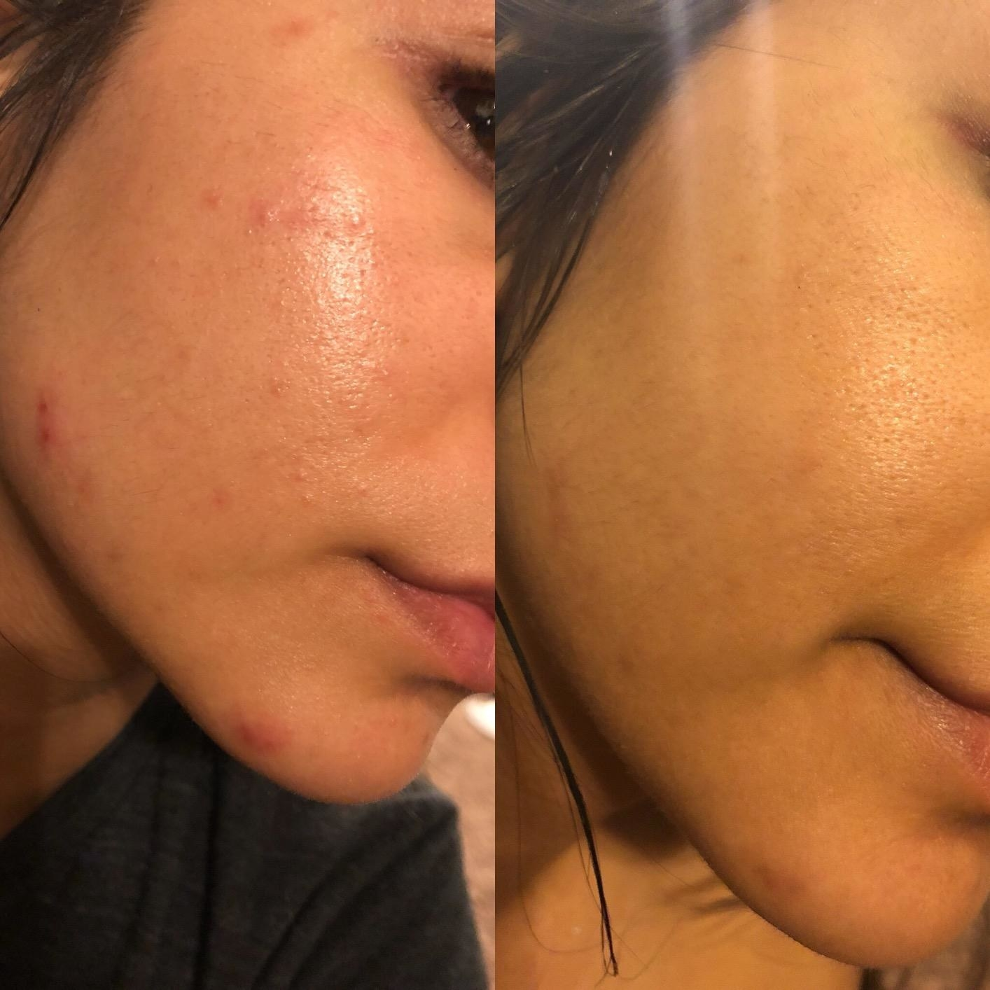 A reviewer's cheek in two images: one with active acne, texture and redness, the other with no active acne and less texture