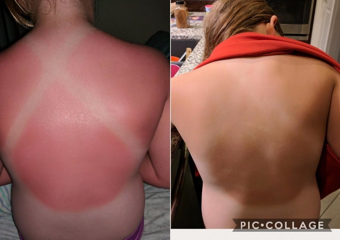 A reviewer's back sunburnt in the shape of a bathing suit back on the left / the same back with completely faded burn