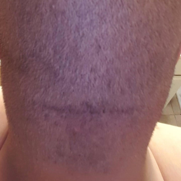 same reviewer showing the back of their head rid of ingrown hairs and bumps after using the skin solution
