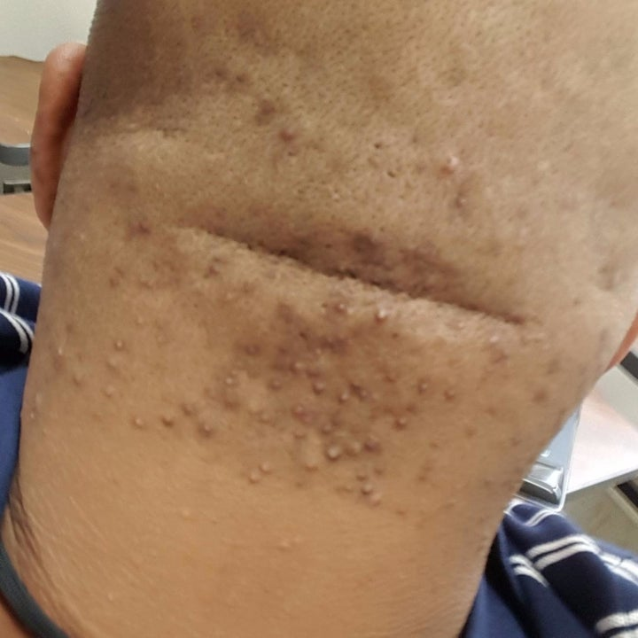 reviewer photo showing the back of their head covered with ingrown hairs