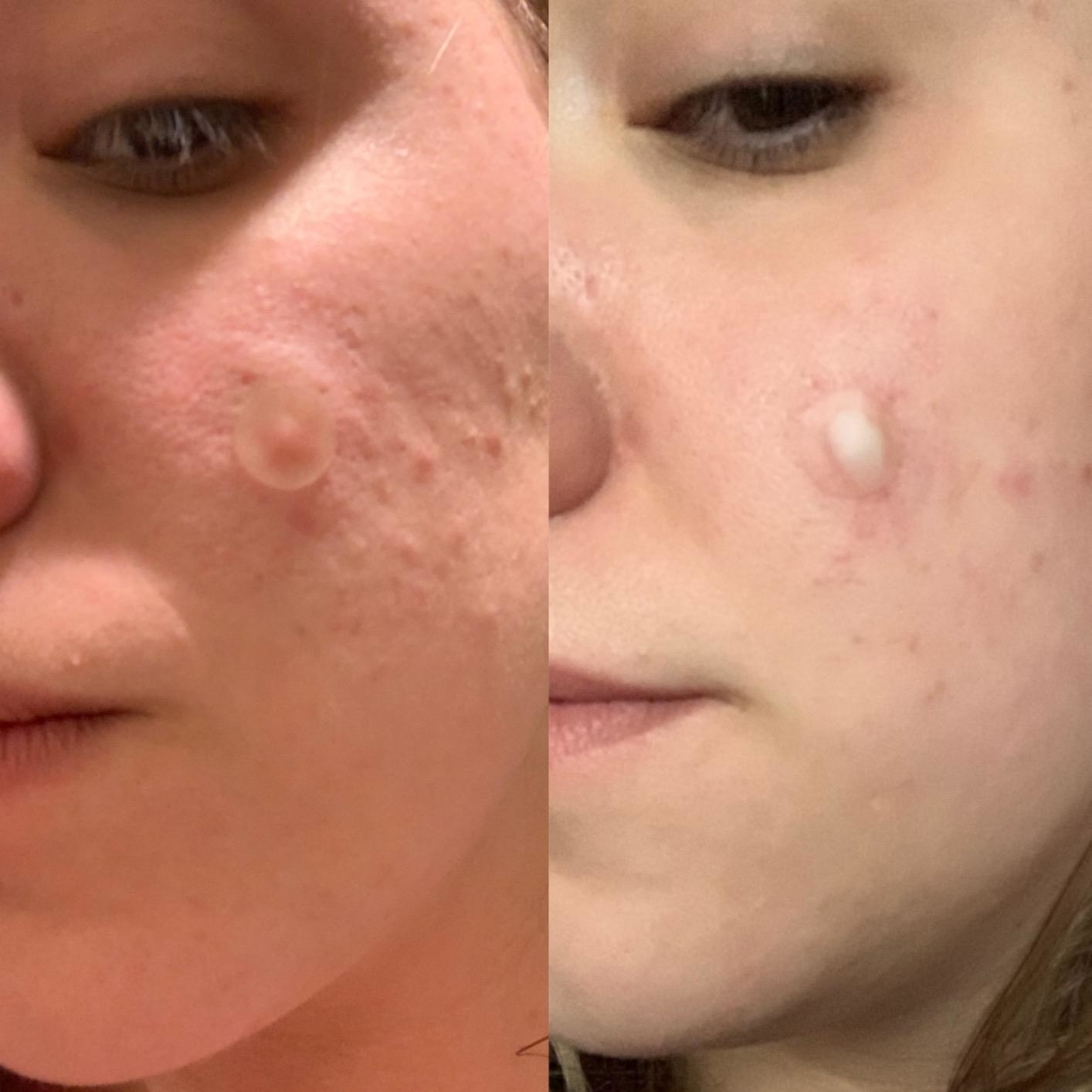 on the right a reviewer's face pimple with a clear pimple patch on it, on the left the same face where the patch is full of white sebum
