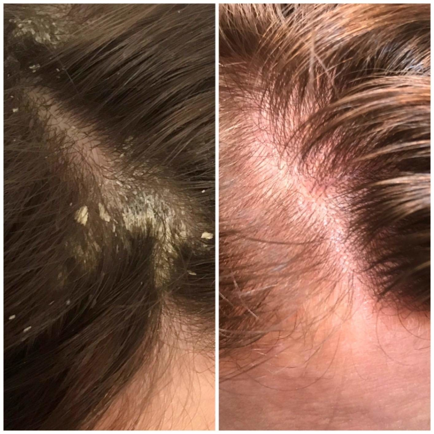 Reviewer images showing scalp before and after using the shampoo. The before photo shows lots of dandruff while the after photo shows a clear scalp