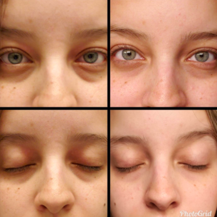 16 Things That Ll Help Brighten Dark Under Eye Circles
