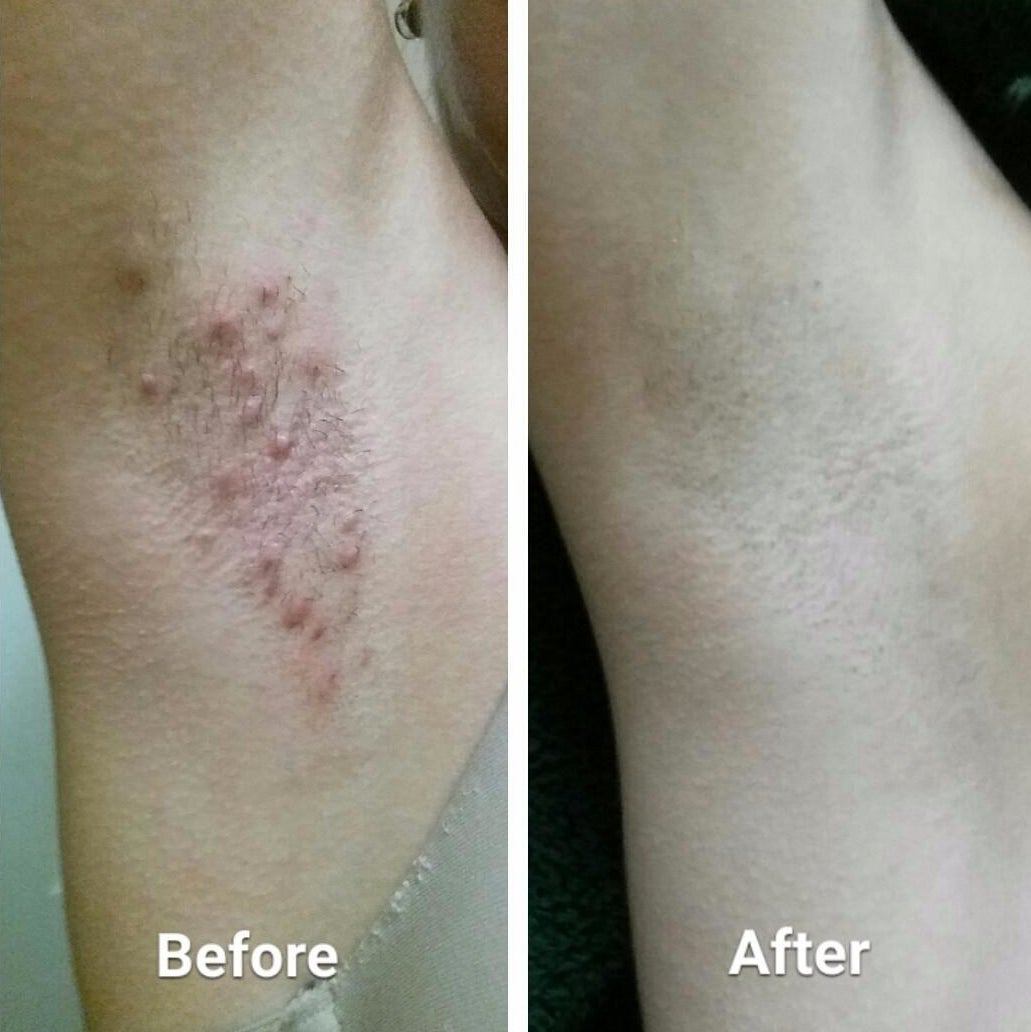 Before: An underarm red and bumpy with razor burn; after, the same underarm, now razor-burn free