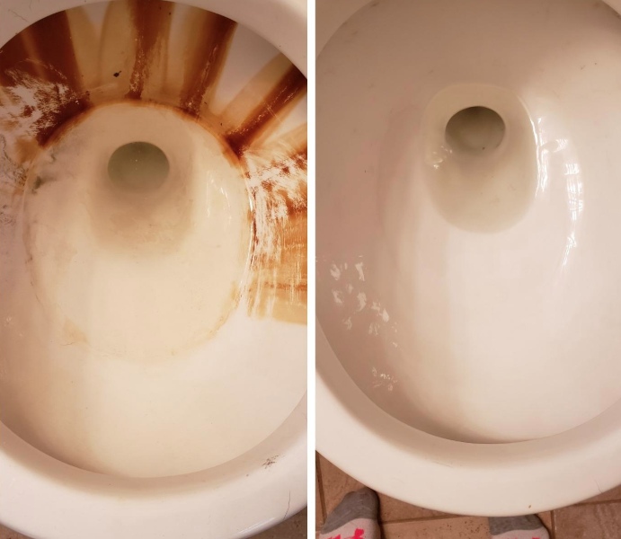 Reviewer's before-and-after image after using the pumice stones to completely remove tons of stains from their toilet