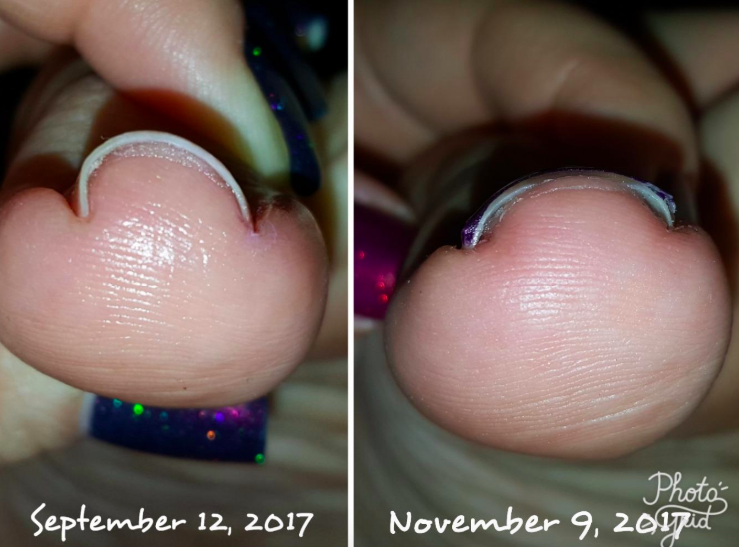 Before: a front-on picture of a reviewer's ingrown nail looking uncomfortably curved and cutting into the toe, dated Sept 12th; After: the same nail, now in a more natural shape, dated Nov. 9th
