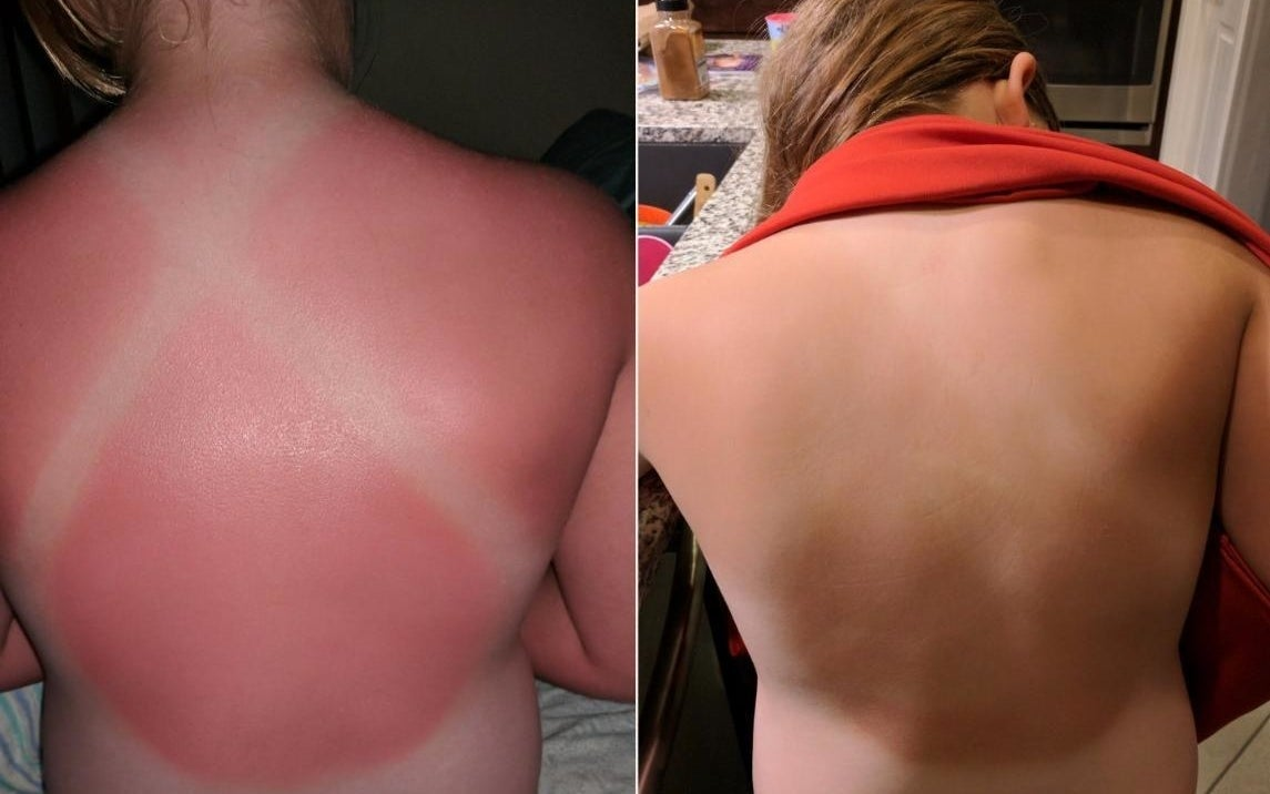 Before: A reviewer with a very sunburned back except for lines where their swimsuit covered; After: the same reviewer, the sunburn faded, but you can still faintly see the swimsuit lines
