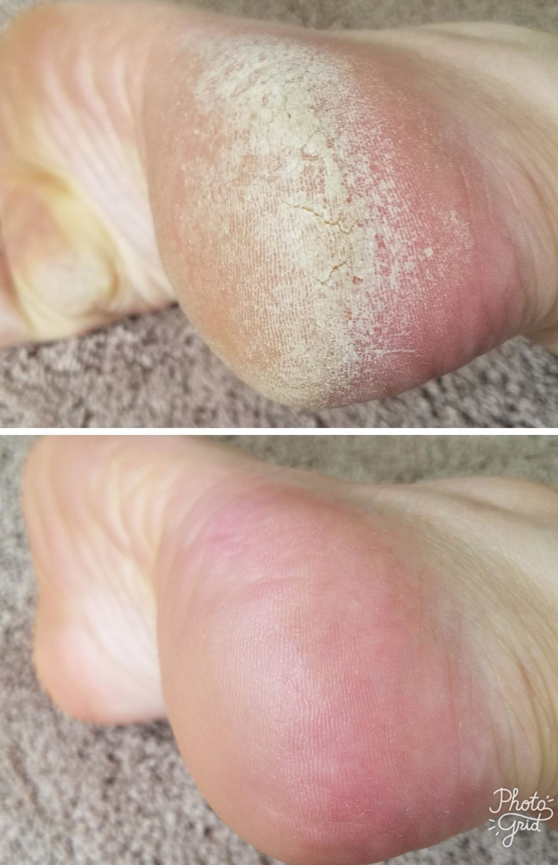 A reviewer's before/after of a callused heel and a smooth heel after use