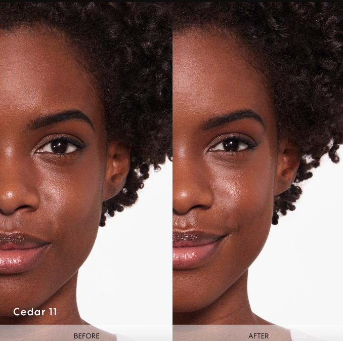 "model with uneven skin labeled ""before"" and with even skin on the right labeled ""after"""