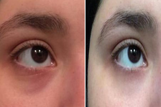 16 Things That Ll Help Brighten Dark Under Eye Circles