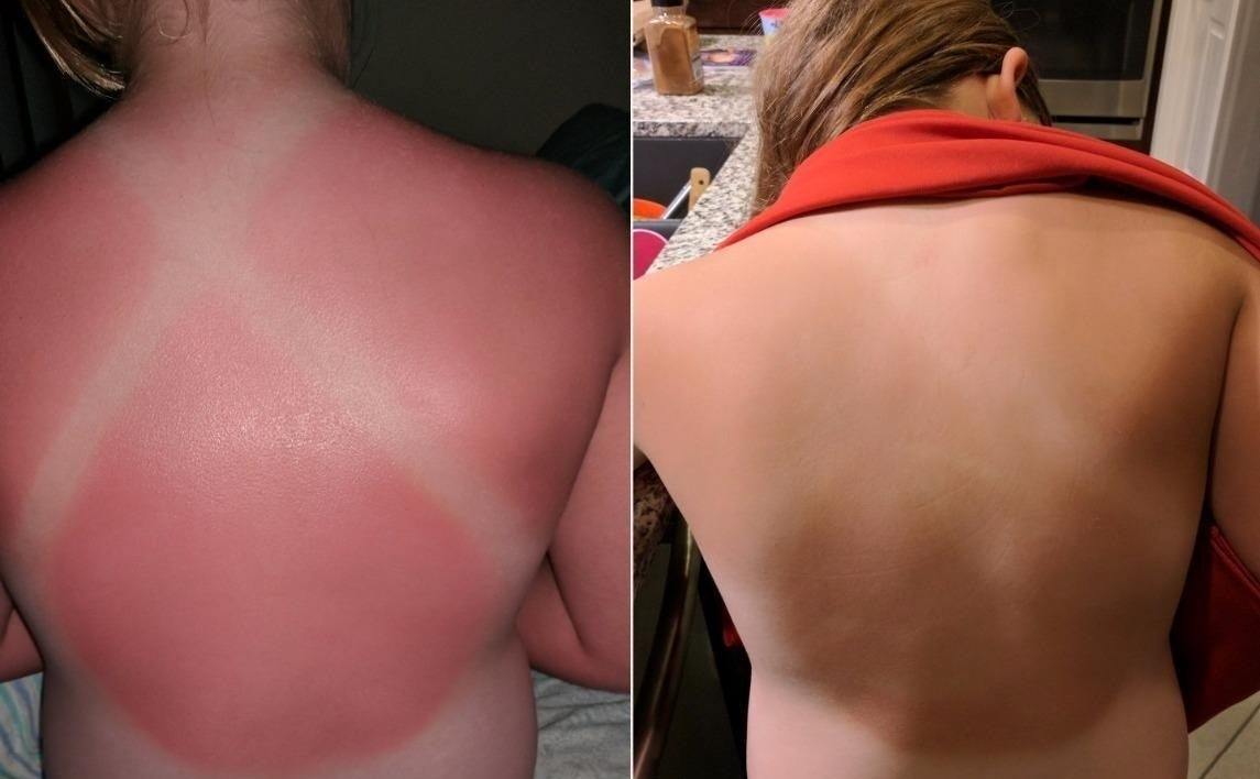 Reviewer's before and after photos showing a sunburn on the back and a back without the sunburn after using the lotion