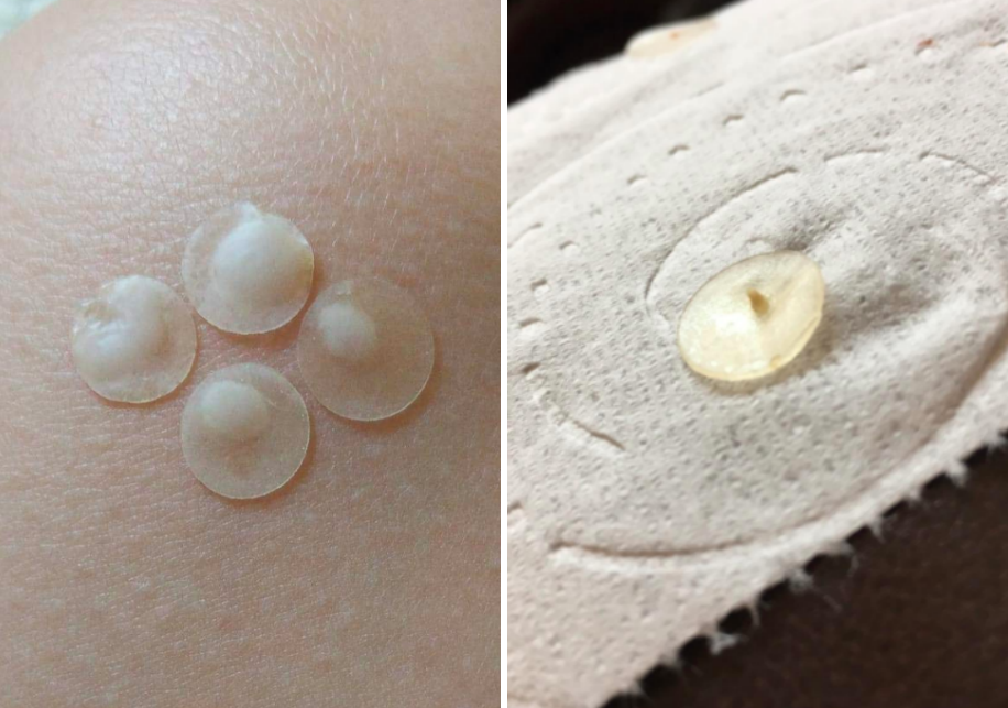 Two close-up reviewer images using the pimple patches, both showing a good amount of sebum the patches extracted