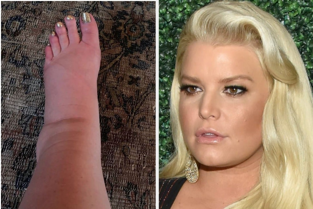 Jessica Simpson Has Ankles Again In Emotional Instagram Post