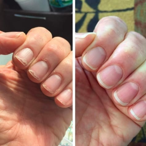 On the left, a reviewer's nails looking brittle, and on the right, the same reviewer's nails looking stronger and healthier