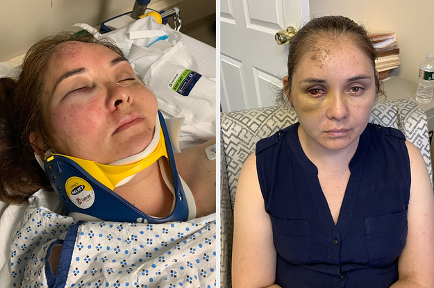 New Jersey Mom Beaten By Boy Who Told Son