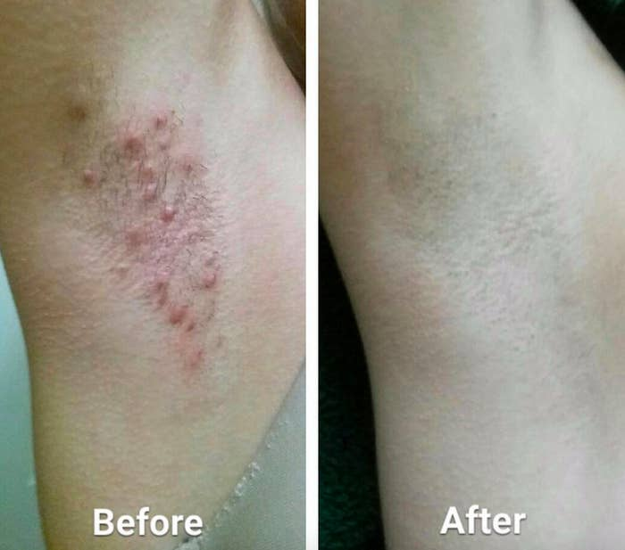 a before reviewer photo of an armpit with bumps and an after photo of the same reviewer with no bumps
