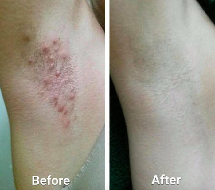 Bumps razor Dermatology Solutions