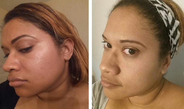a reviewer's face before and after using the facial sponge showing less oil on the skin in the after photo