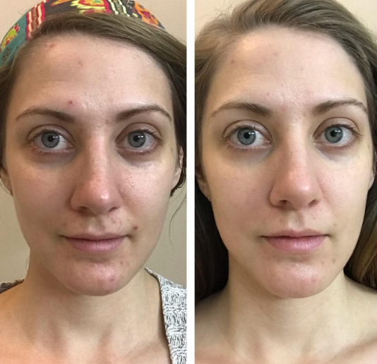 a before and after of a reviewer's face showing clearer skin in the after