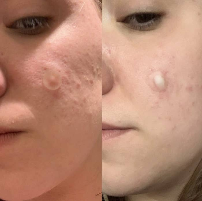 """These patches are super effective and will make your morning routine of fussing over breakouts so much smoother. You can apply the patch directly to the pimple before you go to bed and remove it in the morning. What's gross is that you can really see the pus and gunk on the patch when you remove it, so maybe don't look too closely if you want to keep your breakfast down.Promising review: """"These saved my skin. They take out all the gunk, leaving your pores looking refined with whiteheads gone. You wake up, pull them off, and there's everything there on the patch. I've never been so pleasantly surprised by a product. They actually are the answer to whiteheads and clogged pores. They bring out the stuff you see and don't see under the skin. They clear up the stubborn area I have so easily."""" —SamManGet 36 patches from Amazon for $12.50+ (available in two styles and as larger packs)."""