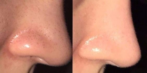 Reviewer's before and after of their nose with blackheads and then clear
