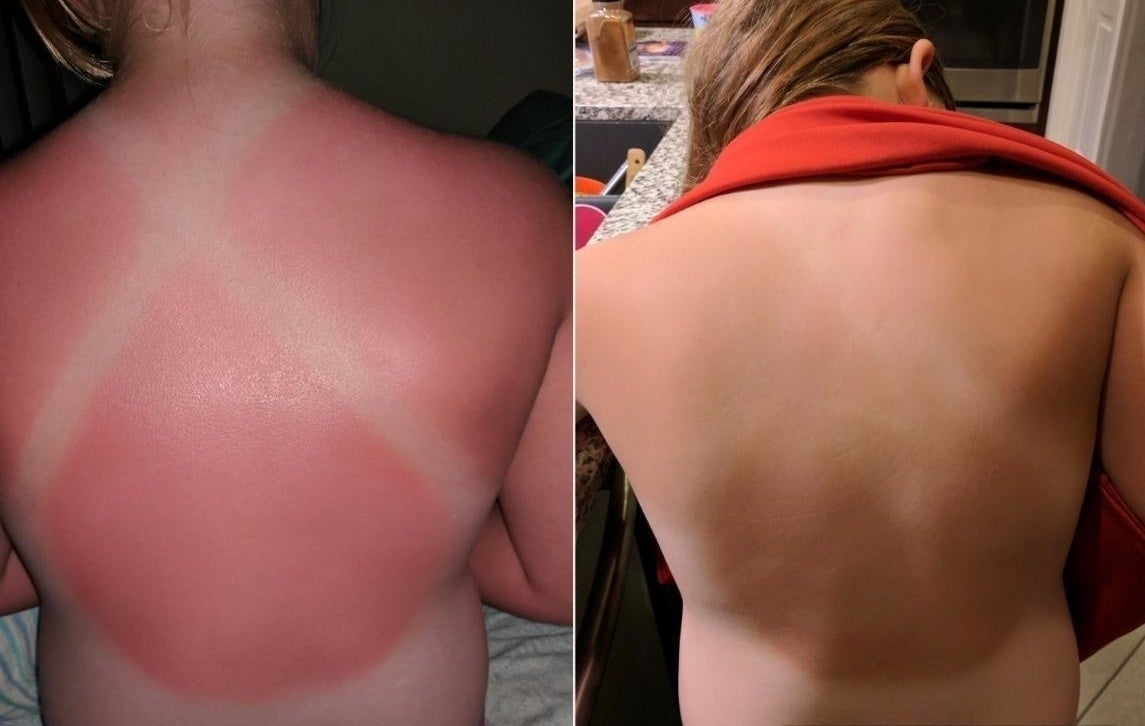 A reviewer's before and after: before, their back hot pink from sunburn; after, their back faded to a tan