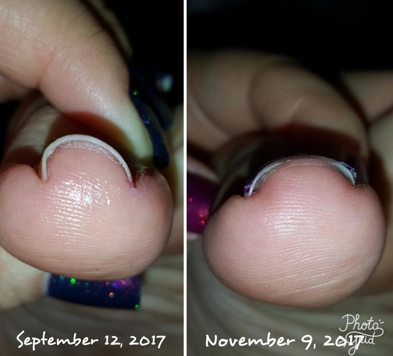 Reviewer images showing big toe before and after using the brace. The before image shows an ingrown nail, the after image shows the nail corrected