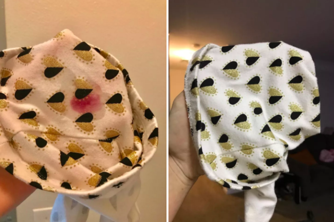 Reviewer before-and-after photos showing a red splotch removed from a piece of baby clothing after treating with the stain remover