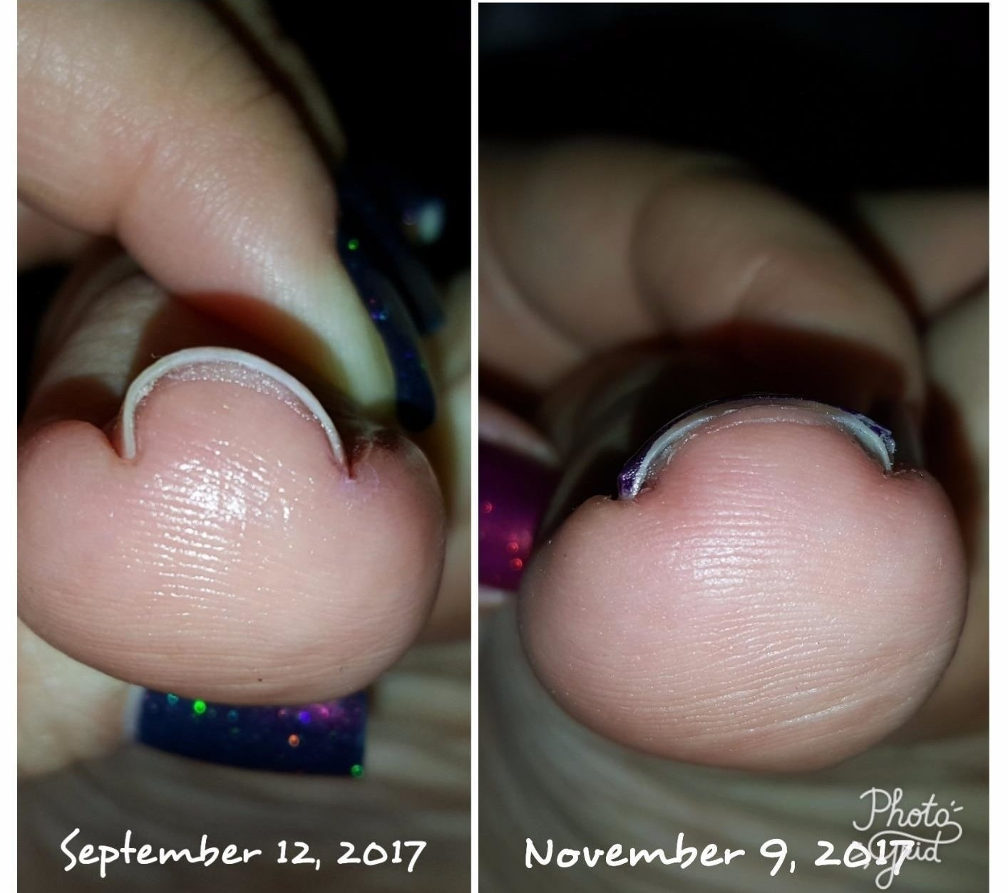 On the left: a reviewer's ingrown toenail on September 12, 2017; on the right: the toenail much much, much less ingrown on November 9, 2017