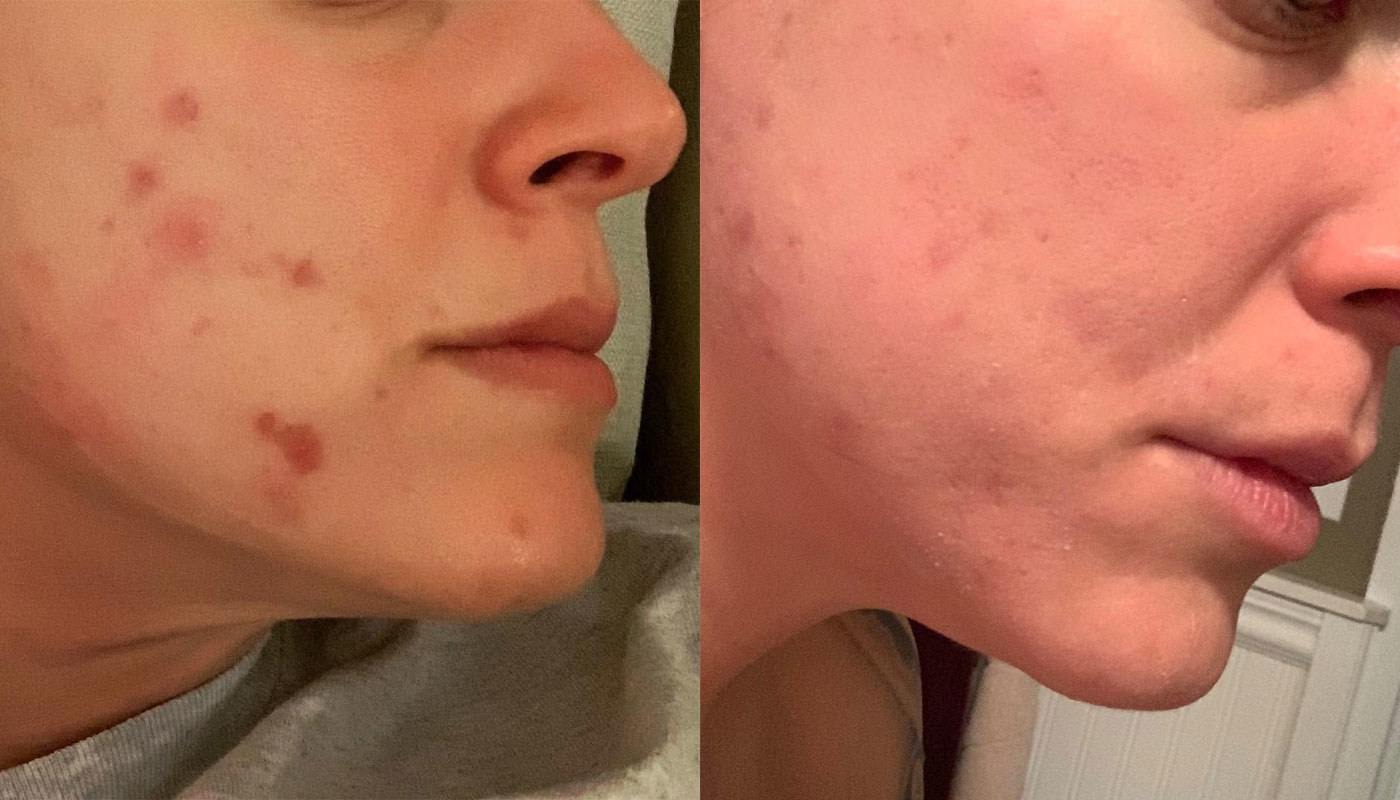 A reviewer with some acne spots on their cheek on the left, and the acne gone (with just some residual marks) on the right