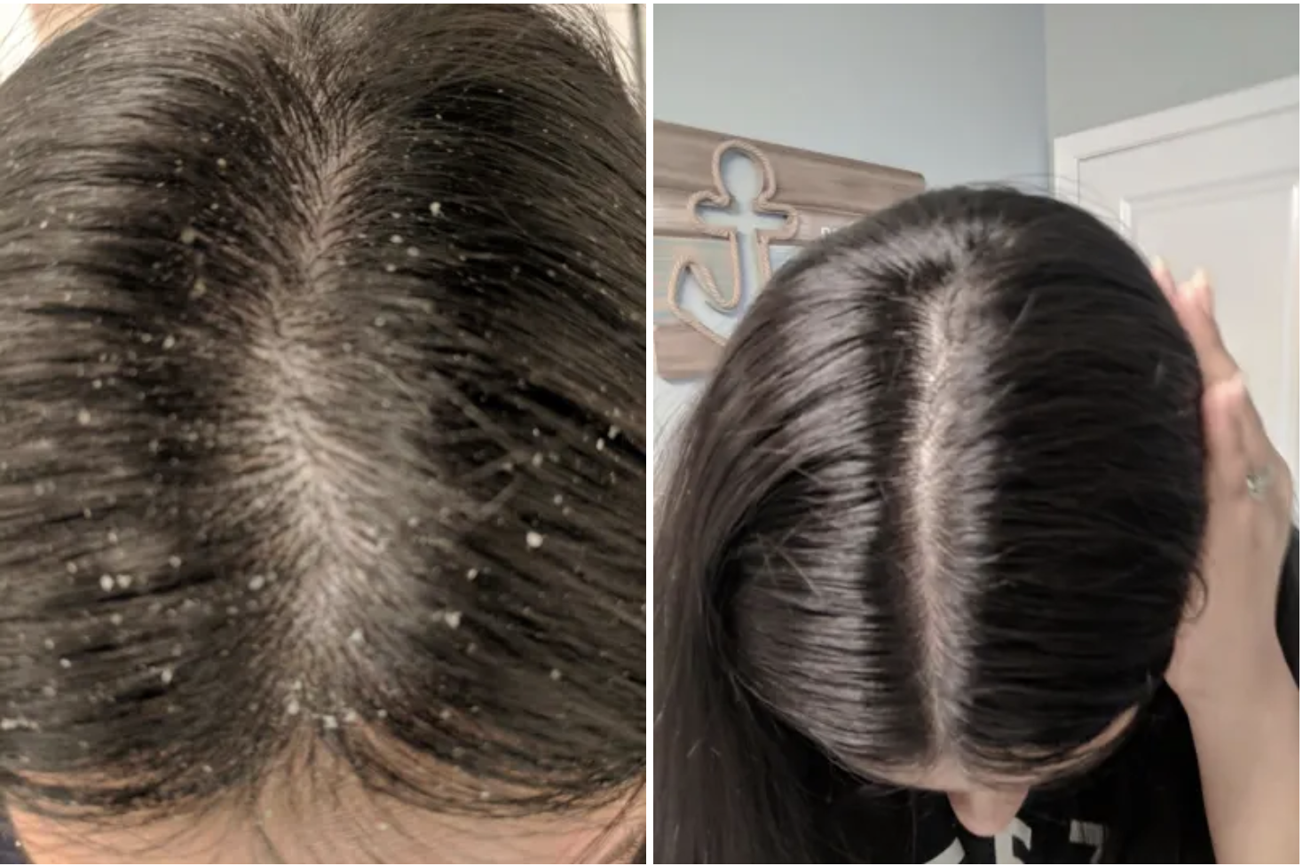 A reviewers scalp with a significant amount of flakes on the left, the same reviewer's scalp, but shiny and flake-free on the right
