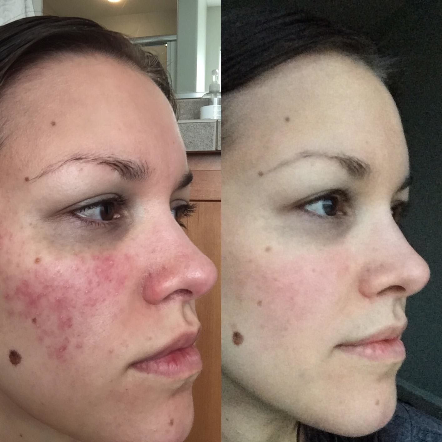 on the left reviewer with very red cheeks, on the right the same reviewer with much less redness
