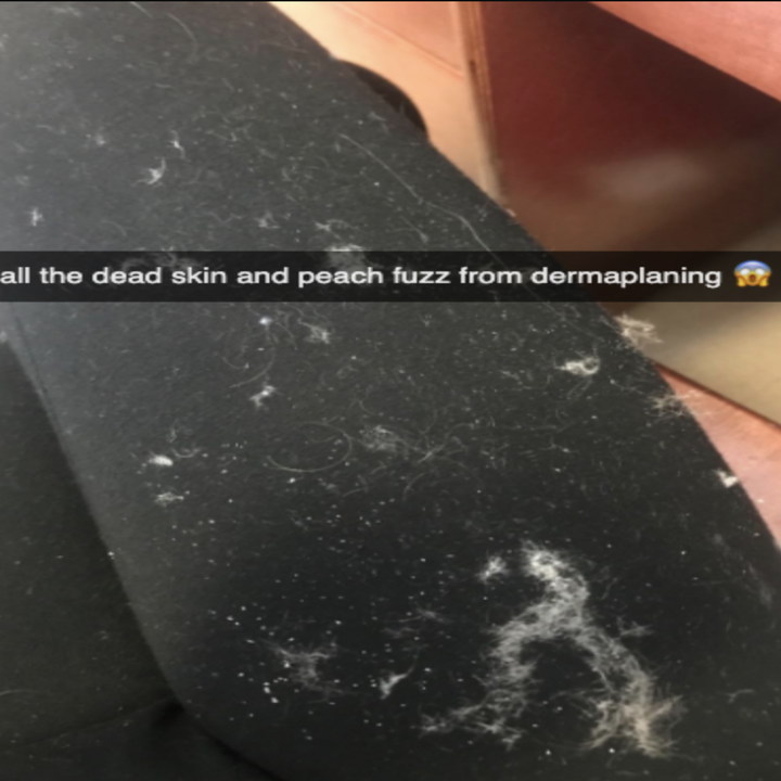 """Reviewer photo of a bunch of fuzz with the words """"all the dead skin and peach fuzz from dermaplaining ?"""""""