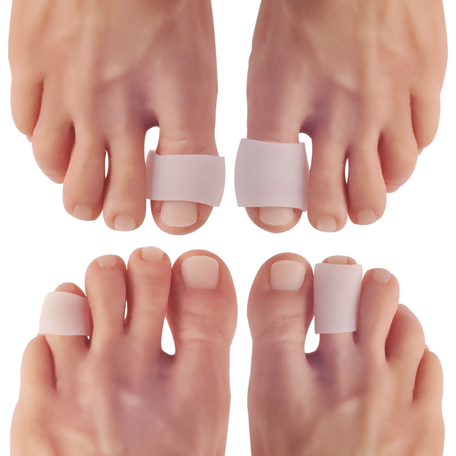 Two sets of feet with various toe protectors on different toes